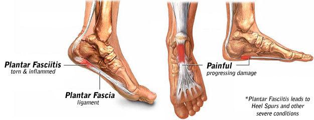 Strash Foot Ankle Care Blog
