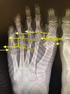 latrogenic short metatarsals strash foot and ankle